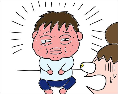 アレルギー 時間 卵 症状
