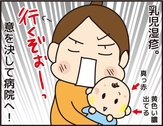 乳児湿疹になった子供を連れて病院へ行く