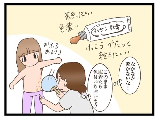 子供 水いぼ イソジン 水いぼにイソジンが効果あるって本当?我が子で試してみた結果